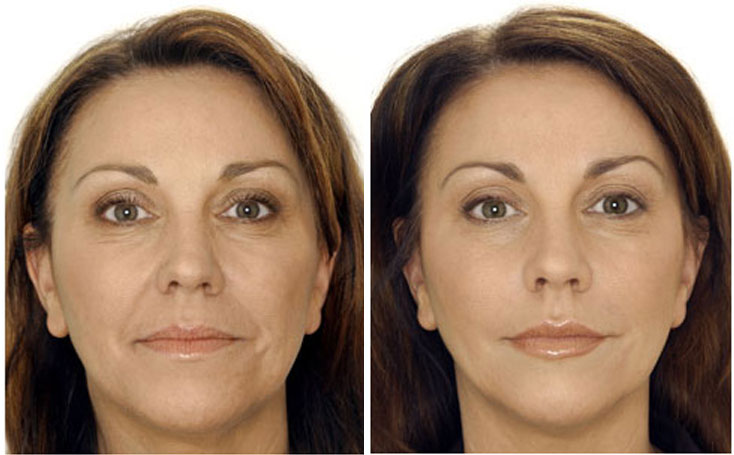 before-after-botox3-gala-b1